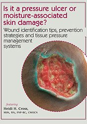 Image ofIs it a pressure ulcer or moisture-associated skin damage? Wound ident